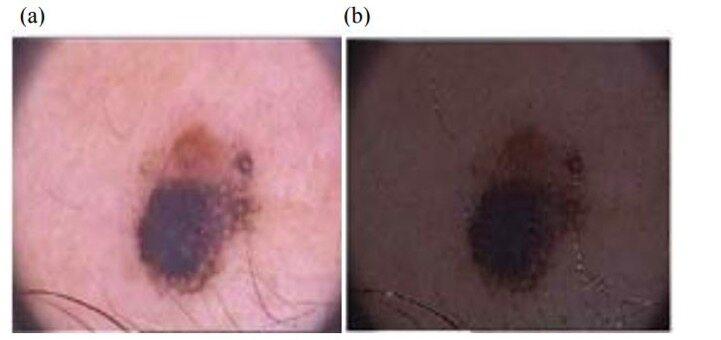 医学图像分割之肿瘤分割的难点分析