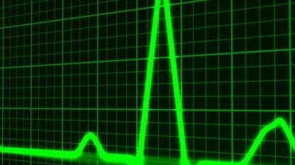 五年了,Heartbleed漏洞仍未修复